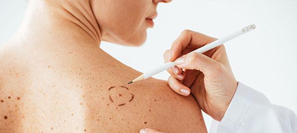 dermatologia-venereologia-roma